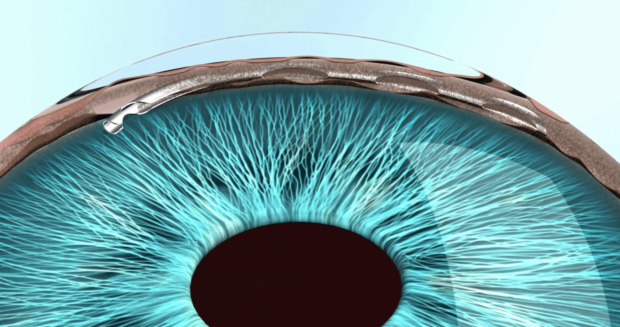 An illustration of an eye with the Hydrus stent implanted into Schlemm's canal.