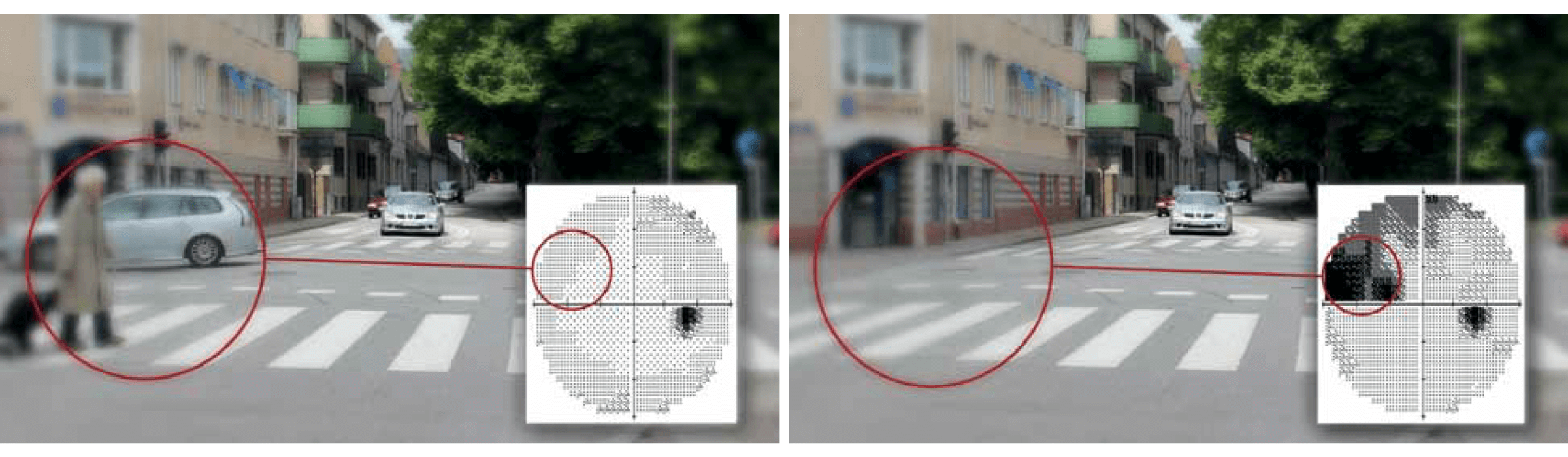 Side-by-side images one showing a person crossing a pedestrian crossing the other showing the filling-in-effect caused by glaucomatous visual field loss. On the second image you can see the pedestrian crossing but not the person crossing it.