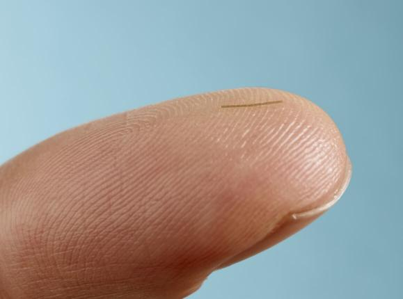 The XEN Gel Implant is 6 mm long and nearly as thin as a strand of human hair.