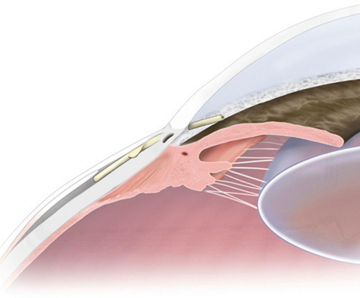 Diagram of eye anatomy with Preserflo Microshunt implanted