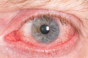 Close-up of a red irritated eye